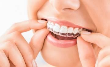 Invisalign | clear braces | midland park