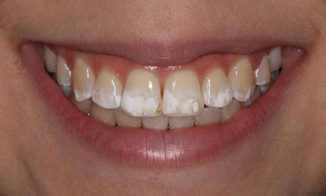 teeth whitening | midland park