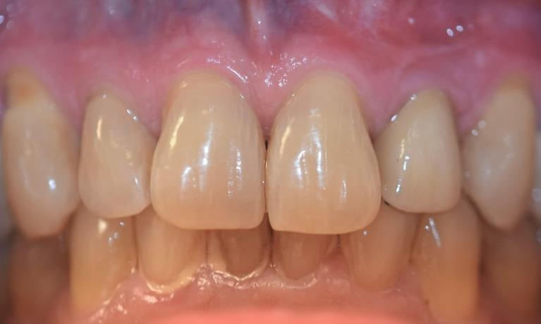 Implant-to-replace-a-missing-front-tooth-After-Image