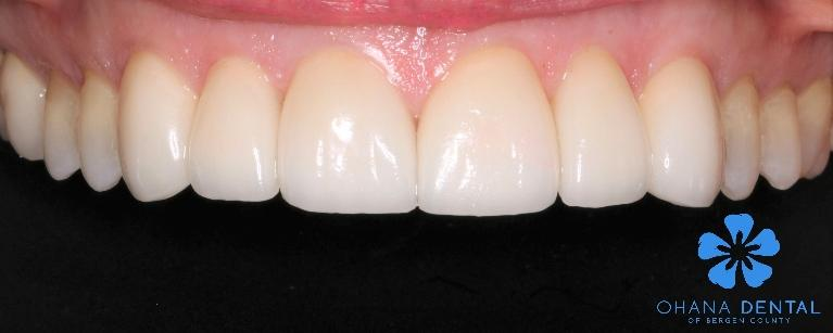 6-veneer-replacement-After-Image