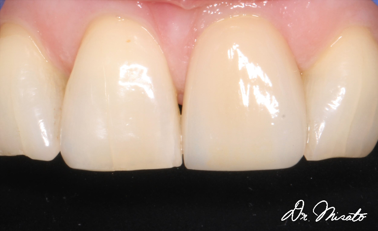 Single-veneer-After-Image