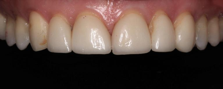6-veneer-replacement-Before-Image