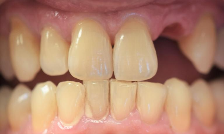 Implant-to-replace-a-missing-front-tooth-Before-Image