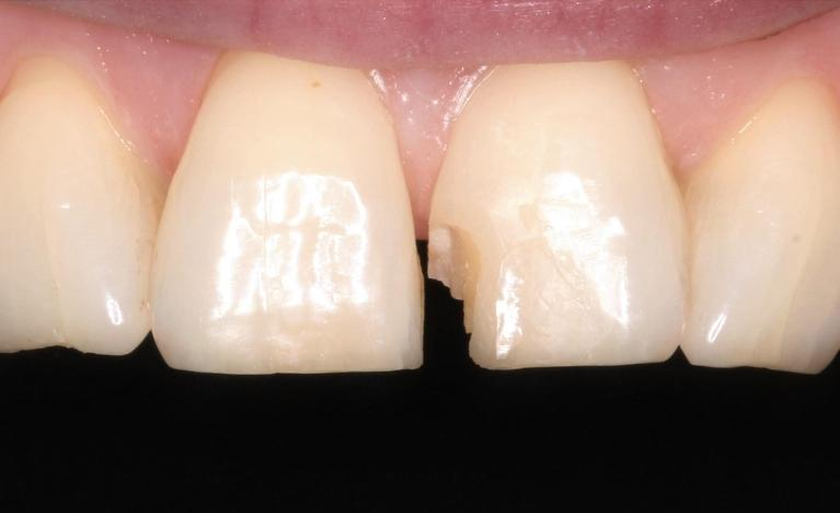 Single-veneer-Before-Image